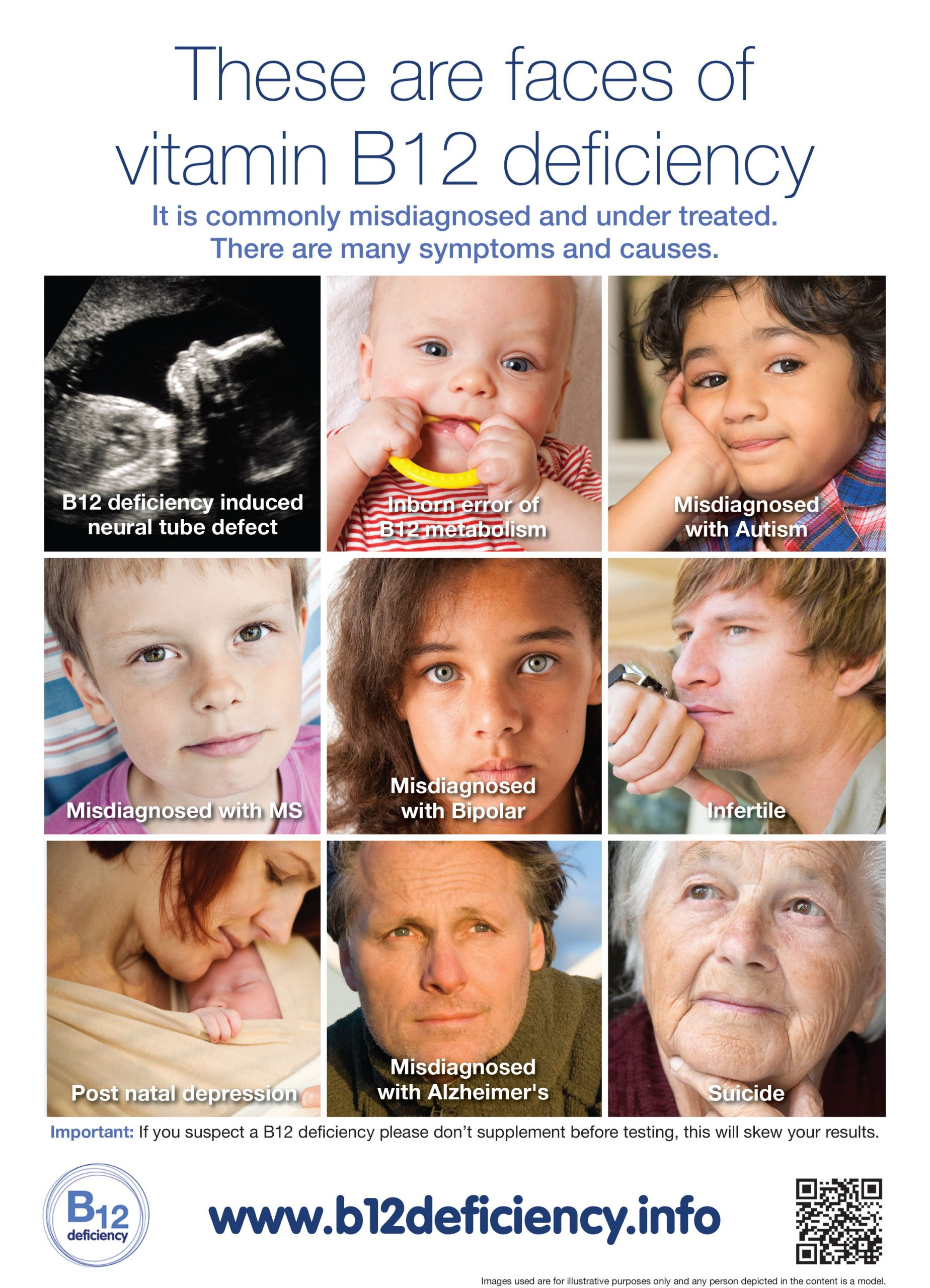 There are many faces of Vitamin B12 deficiency……….